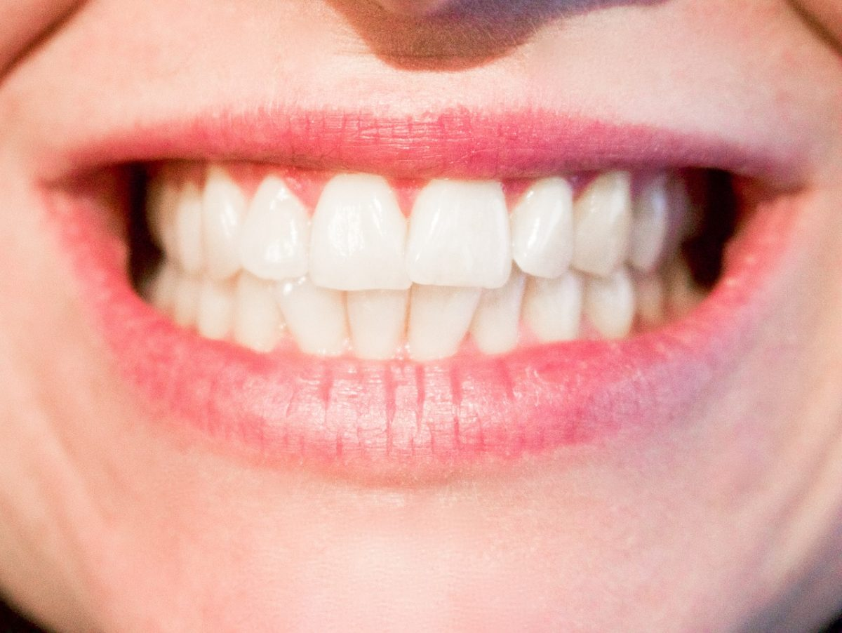 4 Signs You Have Gum Disease and Ways To Treat It