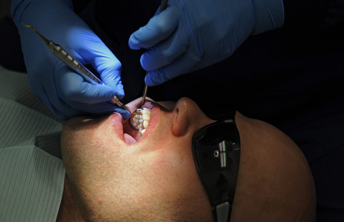 5 Tips To Prevent Your Teeth From Cavity