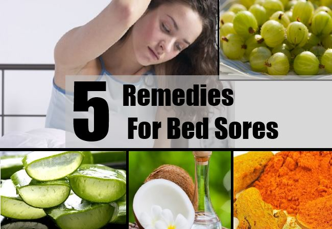 5 Effective Home Remedies For Bed Sores