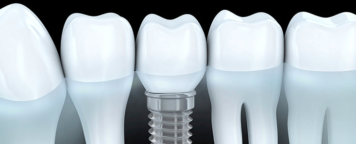 5 Tips On A Quality Dental Care
